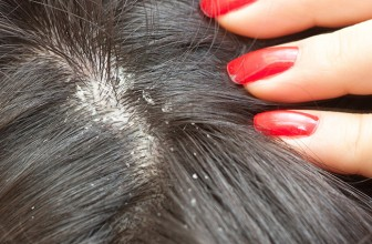 How to Get Rid of Dandruff – 10 Tips to Get Rid of Dandruff Quickly